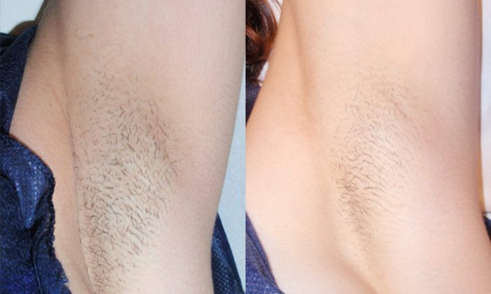 Effective removing hair with the help of innovative cosmetic manipulation