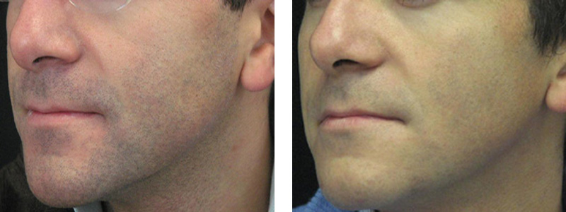Removing hair in the face area with the help of highly technological laser equipment