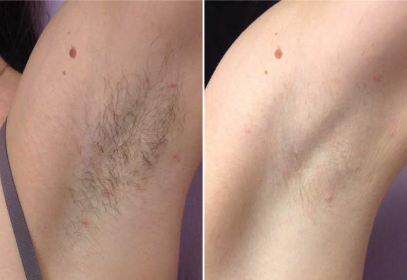 Why using laser equipment is the best way of removing hair
