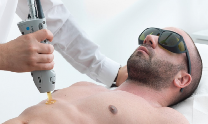 Why the epilating procedure is important for men? Perfect image equals success