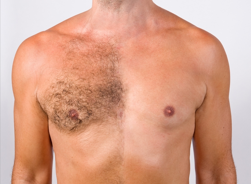 Smooth chest: why to remove unwanted hair is so demanded in that area?