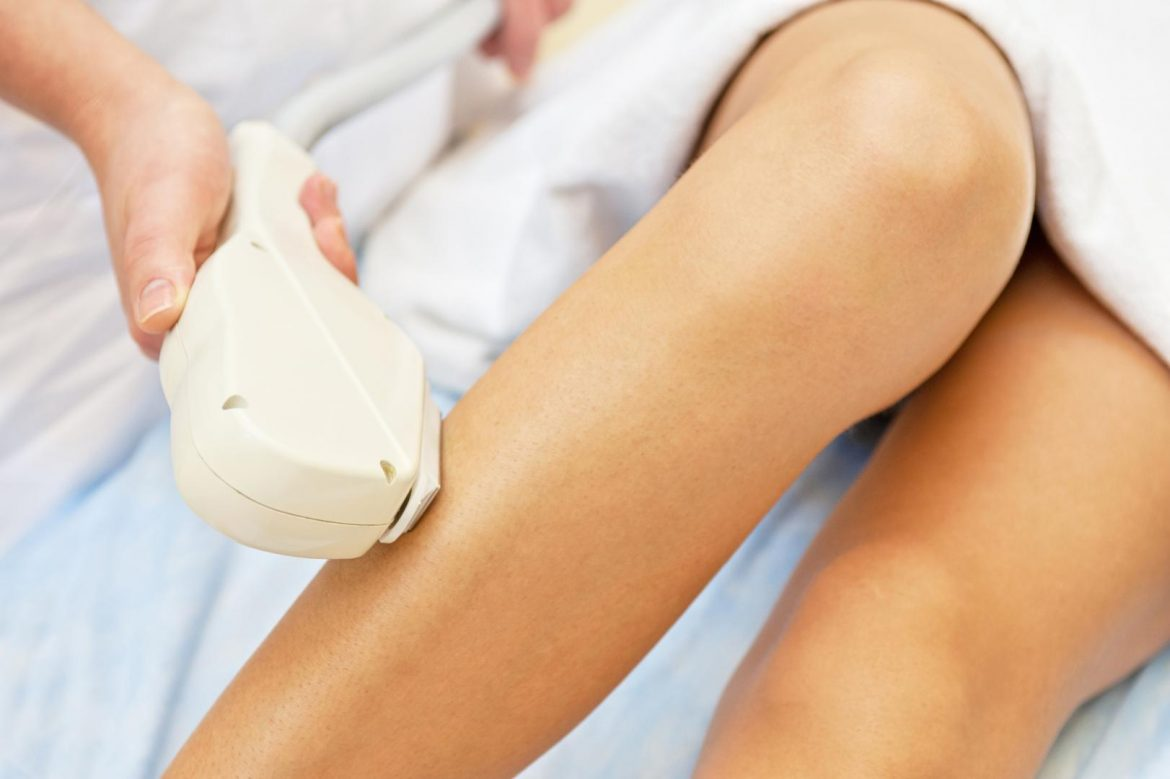 What are the key reasons of laser epilation complications?