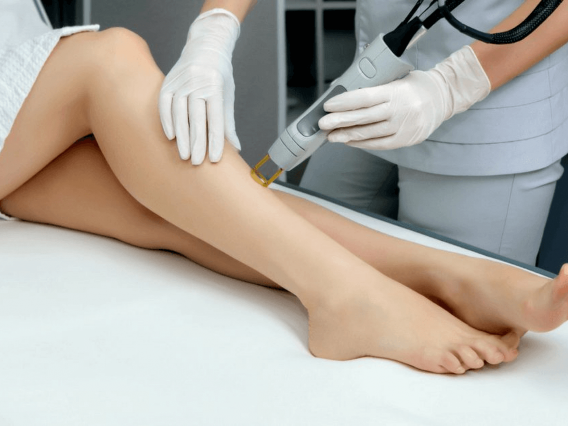 The most widespread questions concerning laser epilating techniques