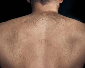 Removing unwanted hair from back area: which method is considered as the best one?
